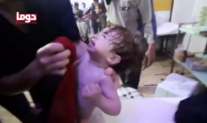Douma baby receives treatment after chemical attack